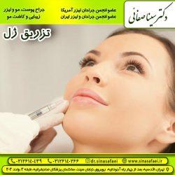 تزریق ژل در تهران