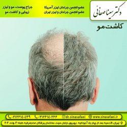 کاشت مو تهران